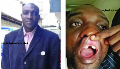 Military brutality: Victim loses tooth, demands compensation
