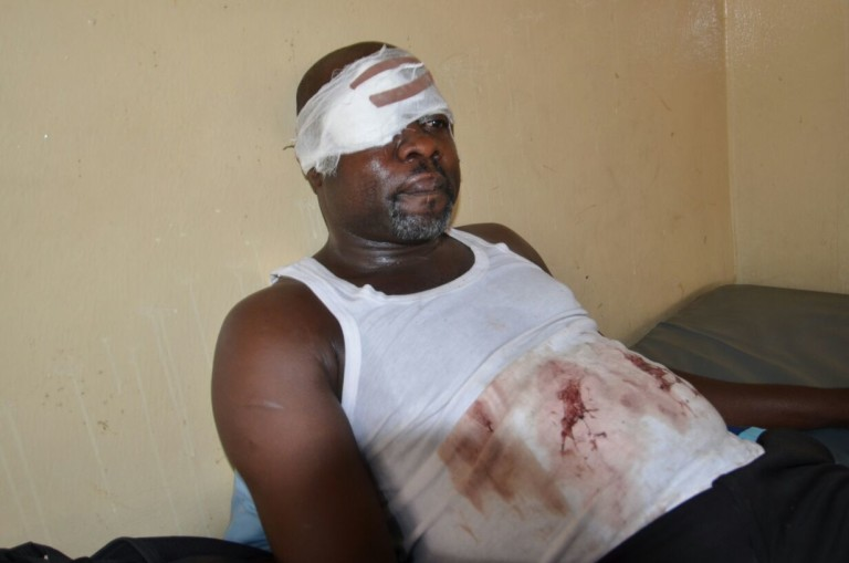 Lawyer battles to regain sight after police assault