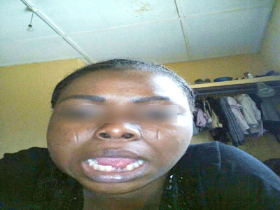Battered corps member: NYSC to decide next week